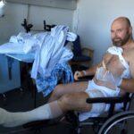 Torbens historie – Mountainbike med 1 ben